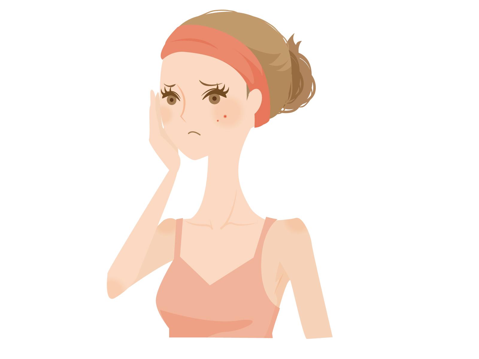 女性の肌荒れのイメージ画像